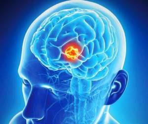 احتمال ابتلا به تومور مغزی هنگام استفاده از موبایل به شدت بالاست.