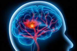 امواج الکترومغناطیس منتشر شده از موبایل و سایر وسایل بی سیم خطر ابتلا به تومور مغزی را به شدت افزایش می دهد.