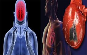 اثر امواج الکترومغناطیس بر مغز و سیستم قلب و عروقی
